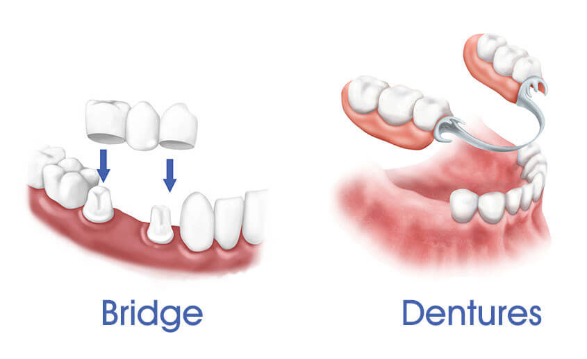 dentures and bridges